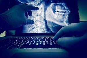 Bone mineral density