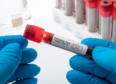 New COVID-19 Antibody Testing Codes from AMA